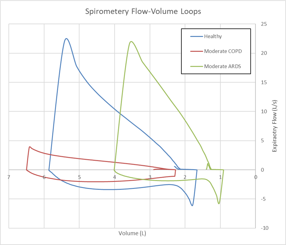 docs/Images/Respiratory/FlowVolumeCurves.png